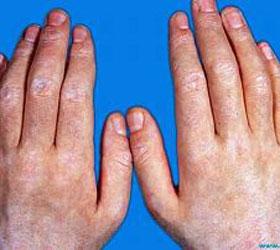 皮肌炎的临床表现是什么