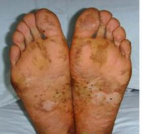 手足癣的病因
