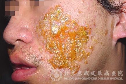 北京   京城皮肤病医院   专家指出,急性湿疹皮肤病的症状高清图片
