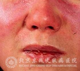 皮肌炎有无传染性