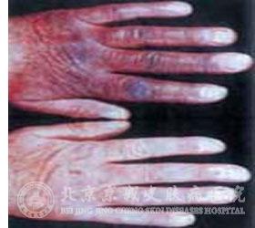 硬皮病患者在皮肤方面的表现