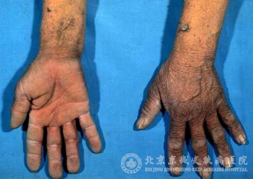 黑棘皮病怎么治疗