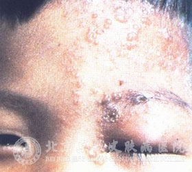 预防带状疱疹应该做好哪些方面