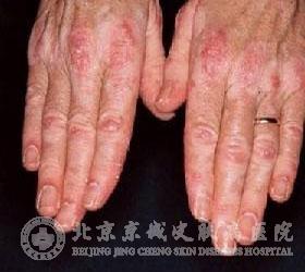皮肌炎是怎么回事呢