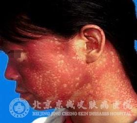 多发性肌炎和皮肌炎的症状