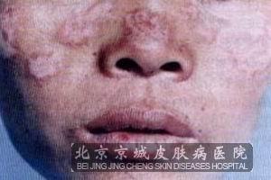 皮肌炎是怎么得的