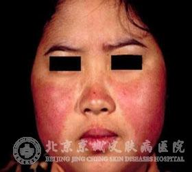 皮肌炎会造成肌肉和皮肤的损害
