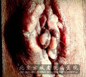 女人吃男人硬鸡女性尖锐湿疣热河辨别尖锐湿疣的症状
