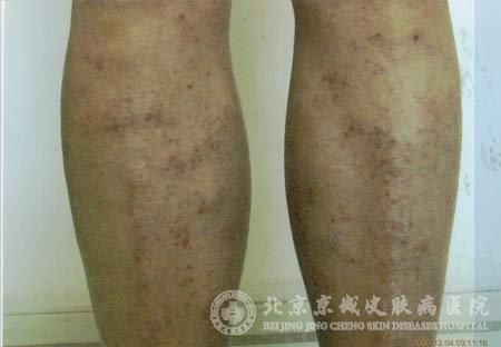 什么是手足湿疹