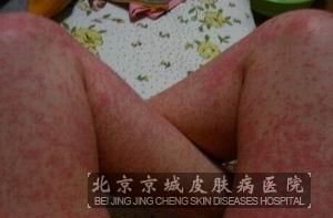 酒精过敏的症状表现都有哪些_过敏_北京京城皮肤病图片
