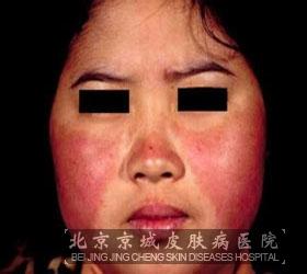 幼年皮肌炎该怎样预防