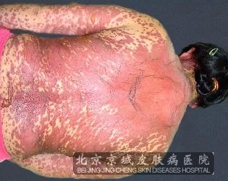 严重性药疹发病特点