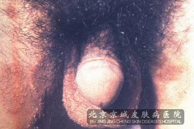 病性淋巴肉芽肿症状:经过3~6周,衣原体可侵犯淋巴系统,出现腹