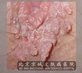 尖锐湿尤病症-口腔尖锐湿疣的临床症状