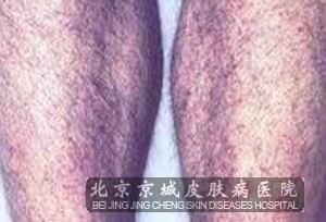 过敏性紫癜性肾炎有哪些危害呢