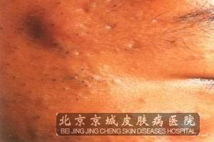 多发性皮脂腺囊肿有该怎样治疗呢
