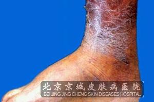 淤滞性皮炎应该如何预防