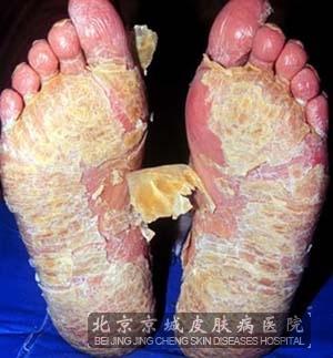 掌跖脓疱病是什么