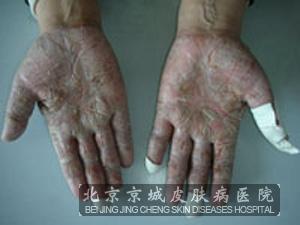 遗传性掌跖角化症的病发症状