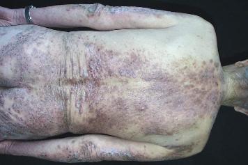 皮肤过敏湿疹症状图片_皮肤湿疹的症状