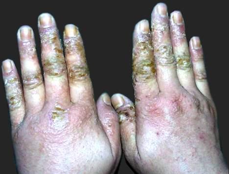 手部湿疹的注意事项
