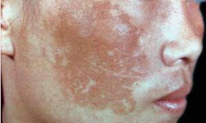 女性黄褐斑的形成原因