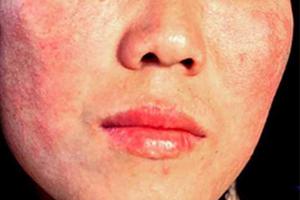 化妆品皮炎需要做的检查有哪些
