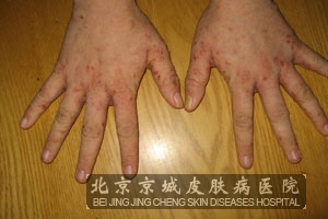 预防疥疮的措施有哪些