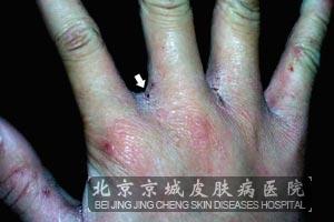 疥疮有哪些诊断方法