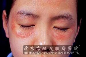 导致传染性湿疹样皮炎发病的原因有哪些