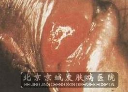 性病性淋病肉芽肿如何防护