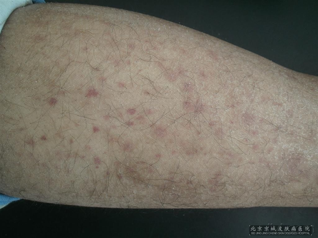 Purpuric Rashes. What causes purpuric rashes? Information ...