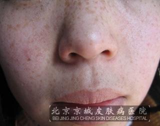 怎样淡化黑色素_淡化雀斑方法有什么_雀斑_北京京城皮肤病医院(北京医保定点机构)