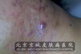 痤疮疤痕治疗方法有哪些