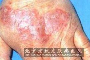 湿疹是什么