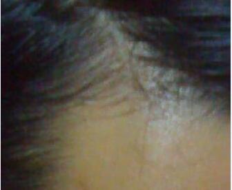 中医专家讲解脱发的原因