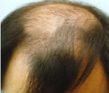 脱发的原因包括哪些呢