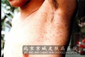 花斑癣治疗方法介绍