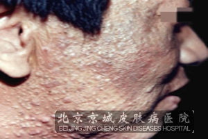 青春痘疤痕修复的方法
