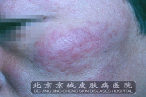 红斑狼疮的初期症状 红斑狼疮怎么治疗才好 -