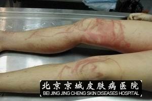 毒虫蛰咬伤是怎么引起的