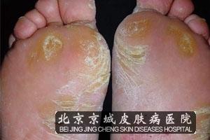 脚气病怎么治_脚气脚气怎么根治_脚气的治疗方法_脚气的症状,原因,图片,治疗等 ...