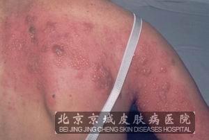 带状疱疹的治疗_带状疱疹怎么治疗