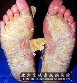 掌跖脓疱病综述