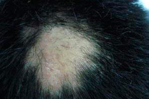 鬼剃头是什么原因_鬼剃头的原因_斑秃_北京京城皮肤病医院(北京医保定点机构)