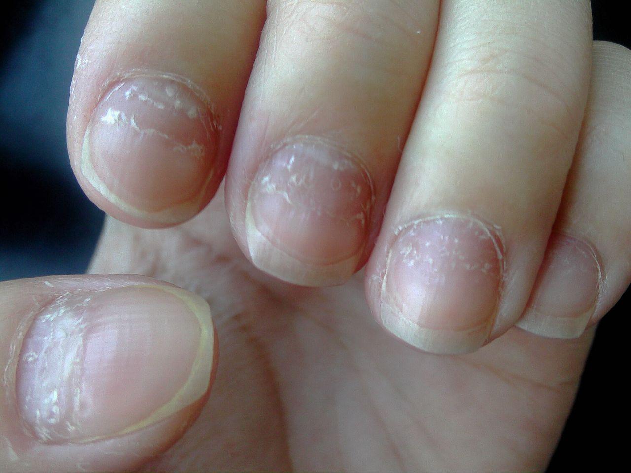 指甲凹凸不平