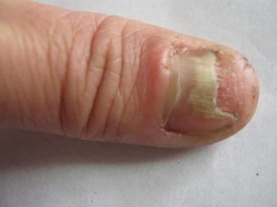 染灰指甲,皮肤癣病