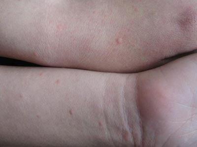 小儿麻疹的症状和治疗图片