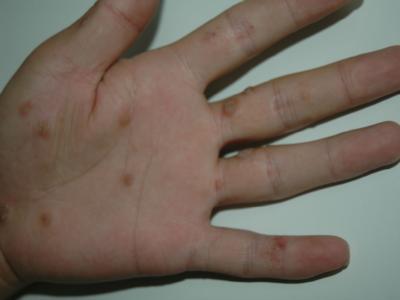 寻常疣初期的症状图片