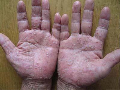 如何诊断关节型银屑病